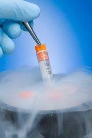 Embriyoların ne zaman transfer edilmeleri gerekir?