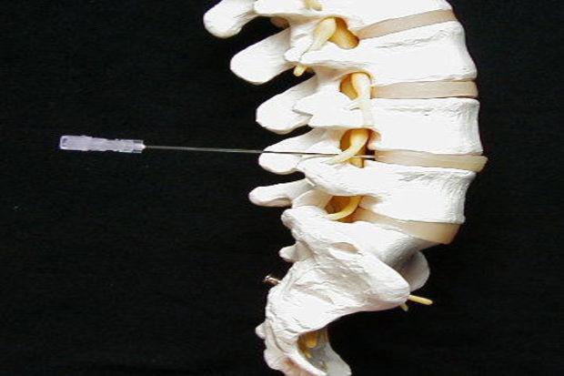 Boyun ağrılarında fizik tedavi ve rehabilitasyon