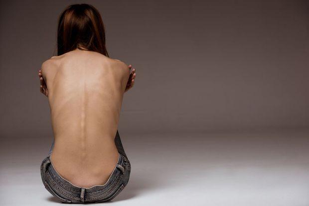 Mankenlerin hastalığı: Anoreksiya