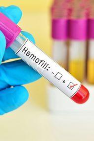 Kalıtsal kan hastalığı: Hemofili
