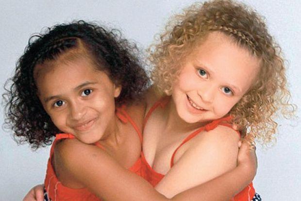 Siyah beyaz ikizler 7 yaşında