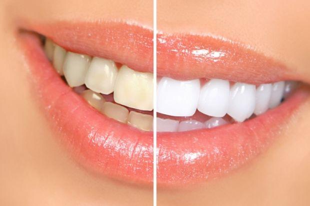 Güzin Kırsaçlıoğlu: Dişler yüzümüzün mücevheridir