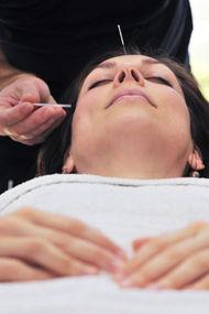 Hamilelik bulantılarına akupunktur tedavisi…