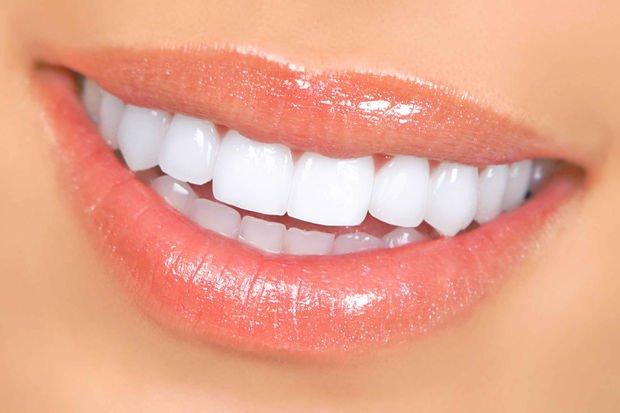 Diş taşı nedir ve nasıl oluşur?