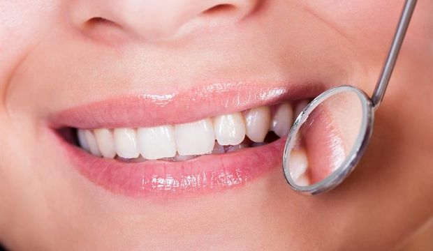 Diş dolgusu siyah mı olmalı beyaz mı?