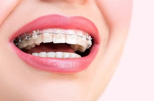 Sinem Kobal ve diş tellerine dair her şey...