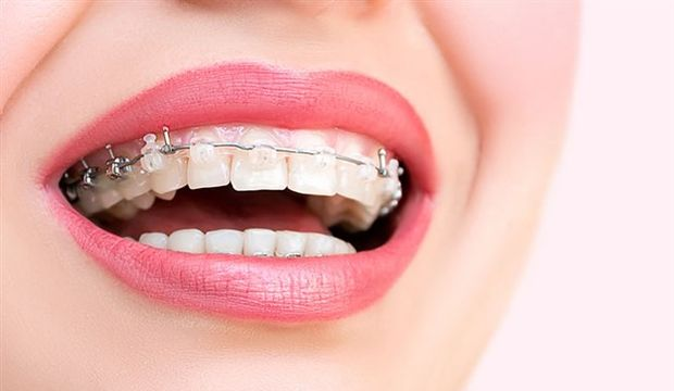 Diş tellerine dair her şey