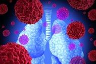 Akciğer kanserini doğru beslenmeyle yenin!