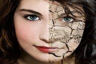 Yaz aylarında cildimizi nasıl korumalıyız?