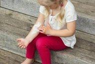 Çocuklarda sinek ve böcek sokmasına dikkat!