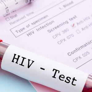 AIDS KRONİK BİR HASTALIK OLUR MU?