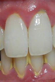 Diş tartarına doğal çözüm