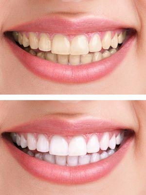 Bitkisel diş beyazlatma