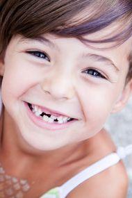 Süt dişleri yerini kalıcı dişlere bırakırken...