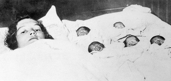 Annette, Cécile, Yvonne, Marie ve Émilie Dionne adındaki beşiz kız kardeşler, 28 Mayıs 1934'te Kanada/Ontario'da dünyaya geldiler. İlk defa şahit olunan bu beşiz doğumunu yaptıran Dr. Allan Roy Dafoe da kısa sürede ünlü olmuştu, çünkü beşiz olarak dünyaya gelip de yenidoğan evresini sağlıklı bir şekilde atlatan ilk bebekler, Dionne kardeşlerdi.