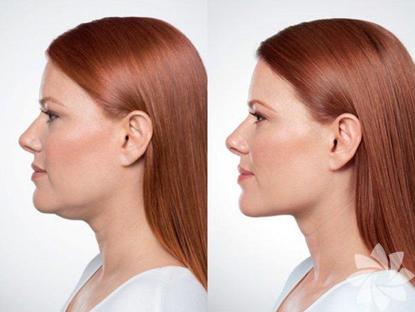Şeker cildin yaşlanmasını hızlandırır Şeker kana karıştığında, kimyasal olarak kolajen ve elastin adı verilen proteinlerle bağlantı kurar ve böylelikle cildinizin yaşlanmasını hızlandırır.