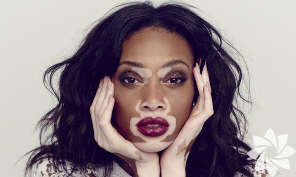 Vitiligo nedir? Derimizde pigment üreten, dolayısıyla derimize rengini veren melanosit hücrelerinin çeşitli sebeplerle hasar görebilir. Bu melanositlerin hasar görmesi sonucu, deri pigment üretilemez. Pigment yetersizliği sonucu deride, dağınık ve yama şeklinde sınırları belli olan beyaz alanlar (leke) oluşur. Buna vitiligo denir.