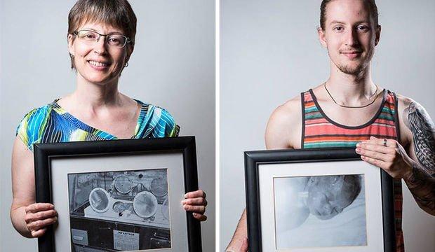 Prematüre doğanların önce ve sonrası fotoğrafları