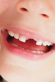 Çocuklarda diş sorunlarına ilk yardım önerileri