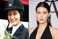 Bella Hadid'in öncesi ve sonrası